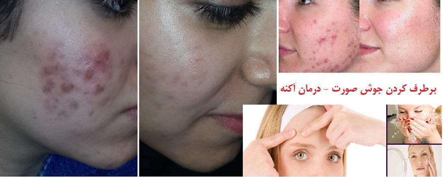 برطرف کردن جوش صورت و درمان آکنه