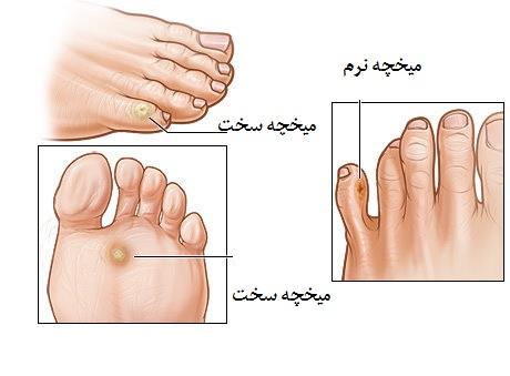 درمان میخچه, میخچه پا