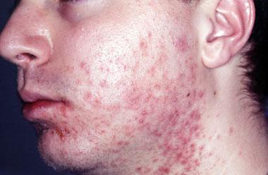 فولیکولیت و جوش های چرکی صورت و گردن بعد از تراشیدن ریش و سبیل در یک مرد جوان