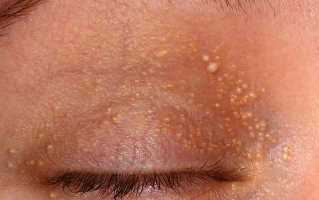 •جوش سفید زیر پوستی اطفال و بالغین