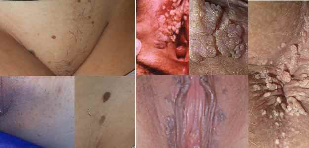 عکسهایی از زگیل تناسلی زنان - اثرات بد روحی و سلامتی دارد