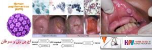 اچ پی وی و سرطان