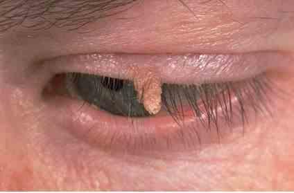 درمان زگیل اطراف چشم با لیزر
