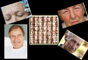 سرطان پوستی – بازال