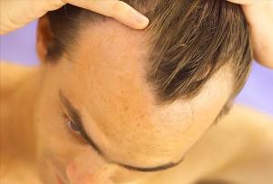 ریزش مو در مردان