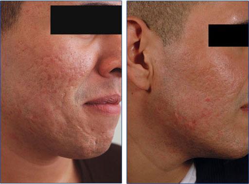 لیزر جای جوش قبل و پس از درمان