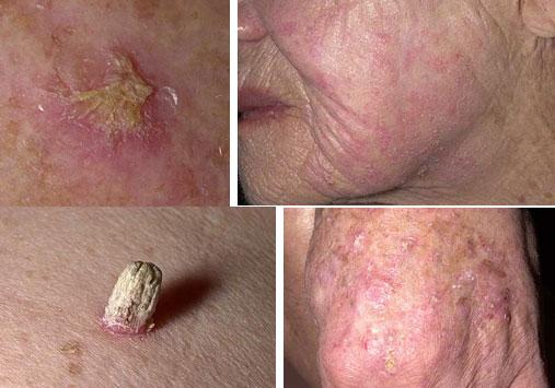پیشگیری از سرطان پوست امکان پذیر است
