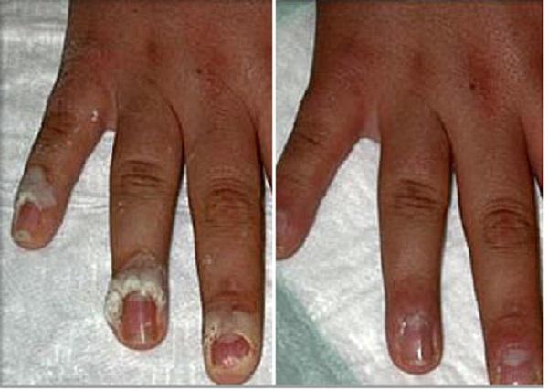 از بین بردن زگیل های متعدد در انگشتان دست (قبل و یک ماه پس از درمان با لیزر) پاسخ درمانی خوب است