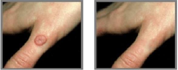 از بین بردن زگیل معمولی در دست (قبل و سه هفته پس از درمان با لیزر) پاسخ درمانی عالی است