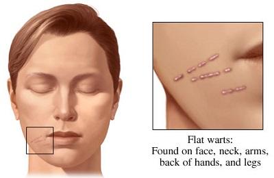 نمونه ای از یک زگیل دهانی Oral Wart - معمولا پاسخ درمانی به لیزر بسیار عالی است