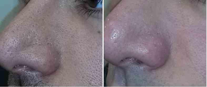 میکرودرم صورت و محو یا کوچک کردن منافذ پوست