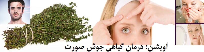 درمان جوش گیاهی