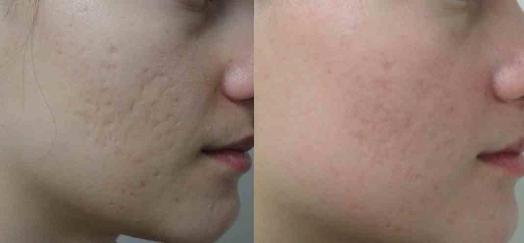 [تصویر:  acne-scar-laser-2.jpg]