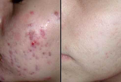درمان سریع جوش صورت با دارو و لیزر