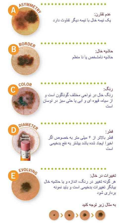 علائم نگران گننده خال (در اینگونه موارد قبل از برداشتن خال صورت و بدن حتما باید نمونه برداری و بررسی سیتوپاتولژیک انجام شود)
