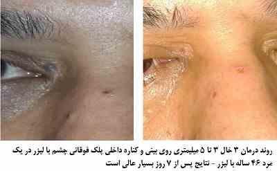 روند درمان 3 خال 3 تا 5 میلیمتری روی بینی و کناره داخلی پلک فوقانی چشم با لیزر در یک مرد 46 ساله با لیزر - نتایج پس از 7 روز بسیار عالی است
