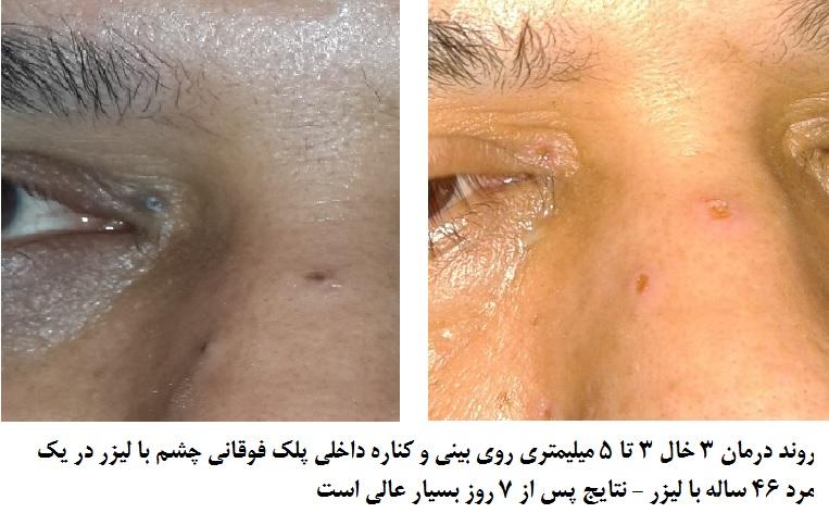 درمان جوش داخل بینی