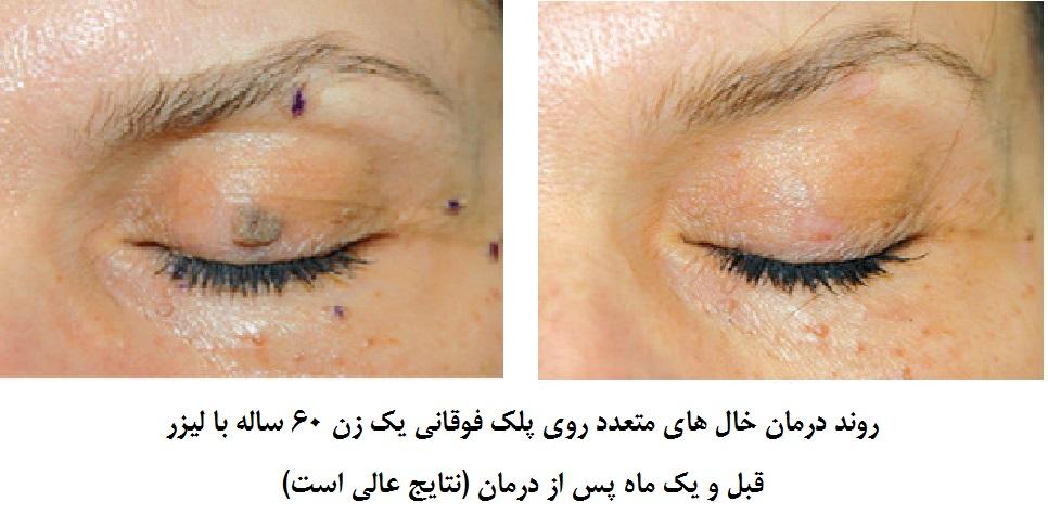روند درمان خال های متعدد روی پلک فوقانی یک زن 60 ساله با لیزر – قبل و یک ماه پس از درمان نتایج عالی است