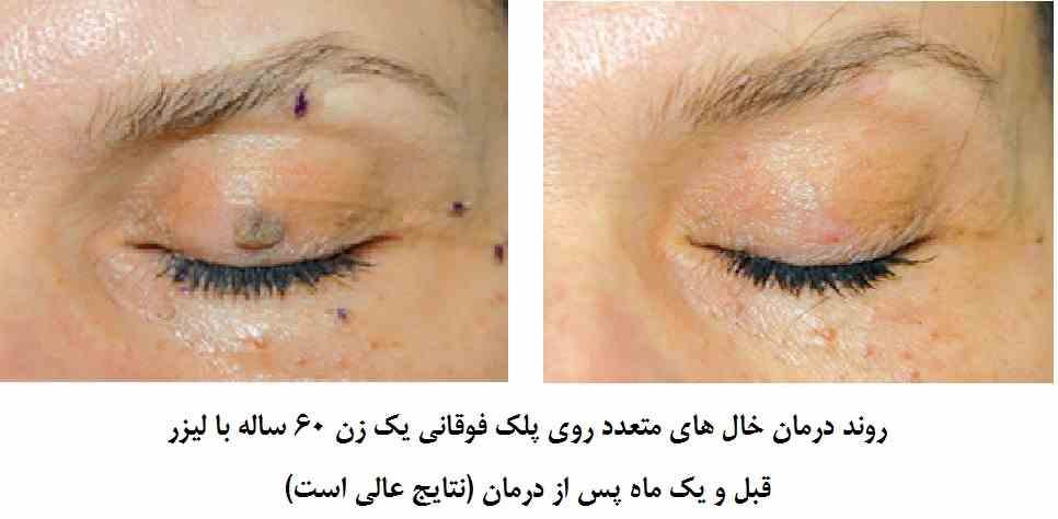 برداشتن خال با لیزر : خالهای متعدد روی پلک فوقانی و اطراف چشم یک زن 60 ساله با لیزر – قبل و یک ماه پس از درمان نتایج عالی است