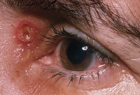 هرپس تناسلی در نزدیکی چشم