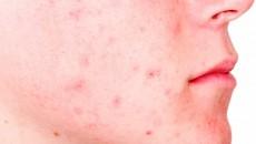 جوش خفیف - یکی از راههای از بین بردن جوش صورت در این نوع استفاده از صابون یا لایه برداری است