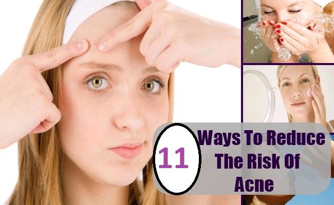 reduce acnea