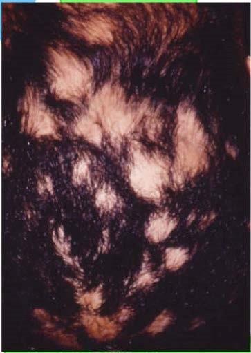 •از دست دادن مو به صورت لکه لکه