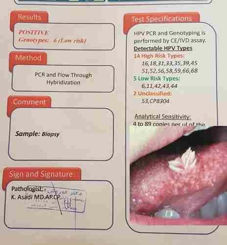 زگیل تناسلی در دختر باکره - ضایعات دهانی با ویروس کم خطر