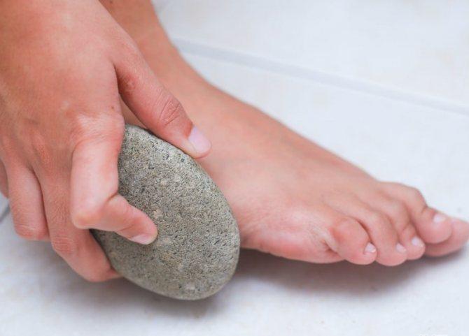 درمان میخچه با سنگ پا