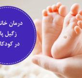 درمان خانگی زگیل پا در کودکان