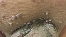 تکثیر زگیل تناسلی (خال گوشتی روی آلت) به دنبال تراشیدن یک خال گوشتی با تیغ