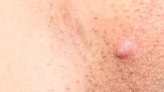 جوش زیر پوستی در ناحیه تناسلی