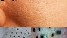 منافذ و روزنه های پوستی