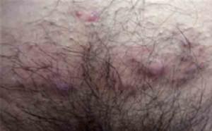 جوش زیر پوستی در ناحیه تناسلی و آکنه ژنیتال