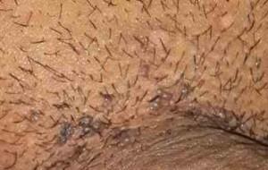 زگیل تناسلی مردان - ضایعات متعدد و کوچک در قاعده آلت تناسلی