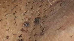 زگیل تناسلی مردان - ضایعات زگیل مسطح و تیره