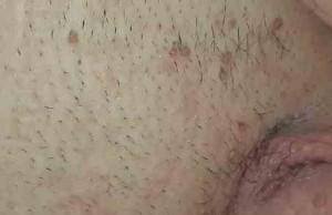 زگیل تناسلی مردان - زگیل های متعدد و همرنگ پوست