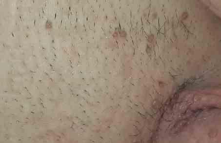 زگیل آلت تناسلی زگیل های متعدد و همرنگ پوست