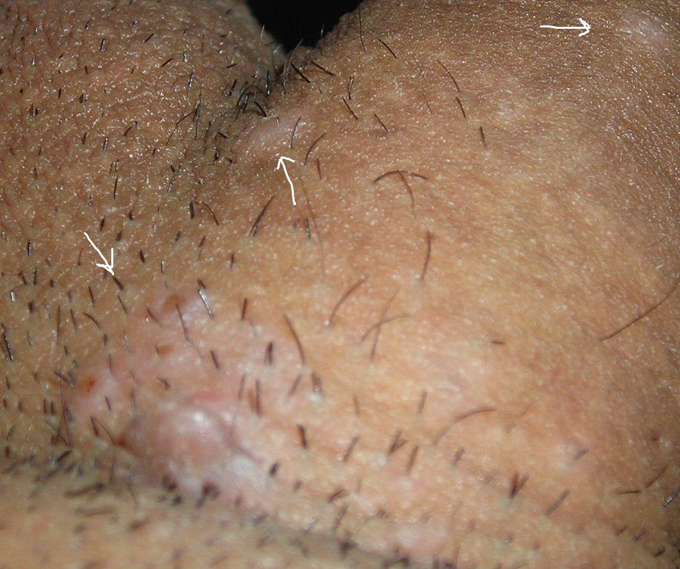 عکس جوش ناحیه تناسلی در مردان
