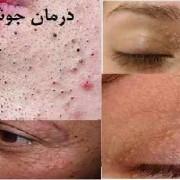 درمان جوش زیر پوستی صورت