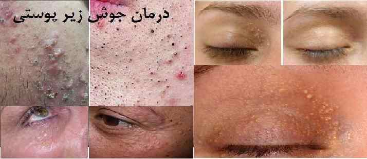 درمان جوش زیر پوست