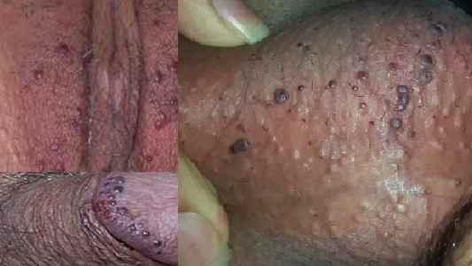 ضایعات پوستی آلت تناسلی - آنژیوکراتوم