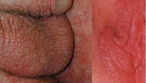 ضایعات پوستی آلت تناسلی - قرمزی منتشر ناشی از درماتیت تماسی