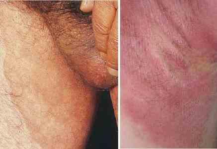 قرمزی و التهاب کشاله ران و آلت تناسلی ناشی از عفونت قارچی