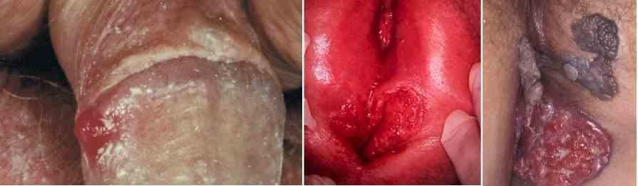 زخم مزمن بدون بهبودی روی آلت تناسلی - سرطان آلت تناسلی