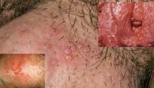 تاول های متعدد و زخم های دردناک روی آلت تناسلی - تبخال تناسلی