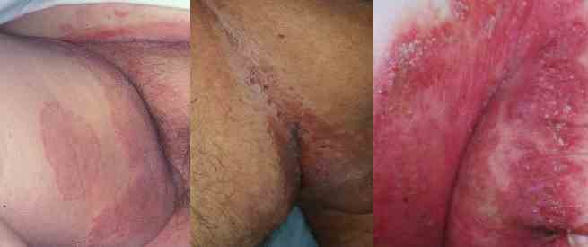 التهاب چین های بدن (اینترتریگو)