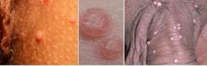 برآمدگی های کوچک ناف دار روی آلت تناسلی - مولوسکوم