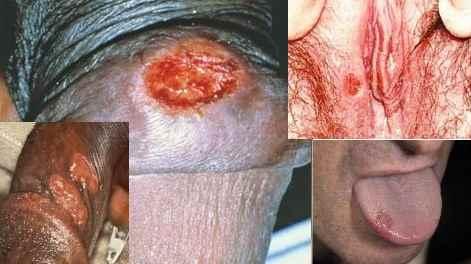 زخم منفرد گرد یا بیضی با حاشیه مشخص و بدون درد آلت تناسلی - سیفلیس