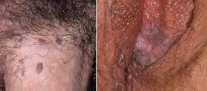 ضایعات پوستی آلت تناسلی و لک های تیره - بونوئید پاپولوزیس